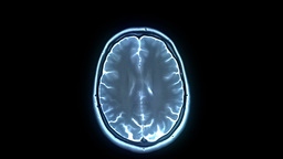MRI scan CG動画素材