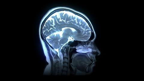 MRI scan Animation