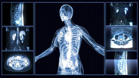 Female Body MRI Scan Animation