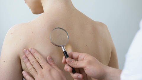 Physician examining birthmark with magnifying glass, diagnosis of skin cancer Live Action