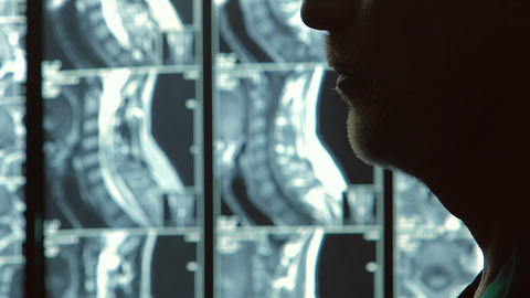 Concentrated vertebrologist looking at spine MRI scan, health care, closeup Footage