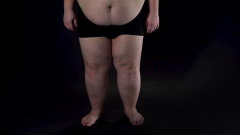 Obese male legs on dark background, health problems, insecurities, disease Footage