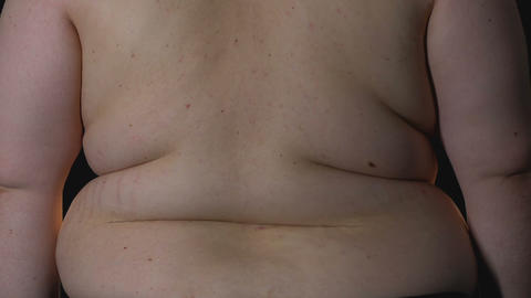 Overweight male body on black background, stretch marks and cellulite, obesity Live Action