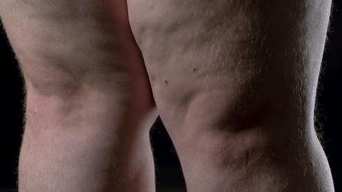 Overweight male legs on black background, lack of physical activity, cellulite Footage