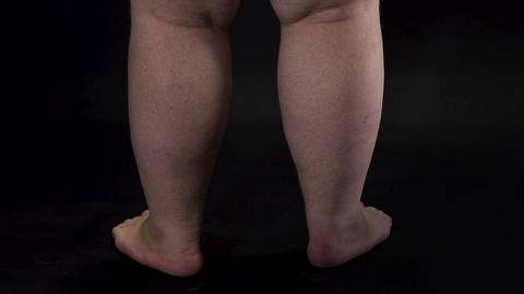 Obese male legs turning around dark background, body care, unhealthy nutrition Live Action