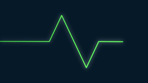 EKG-plainbackground 1 Live影片