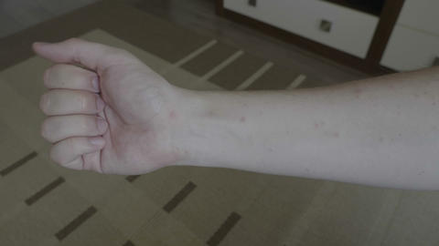 Young man looking on his arm with smallpox viral disease marks on skin Footage
