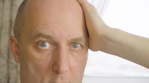 Portrait man touching bald head by hand close up. Face bald man stroking head Live Action