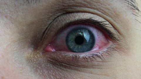 Sore Red Human Eye ビデオ