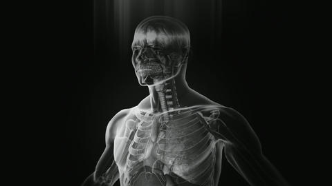 X-Ray Animation