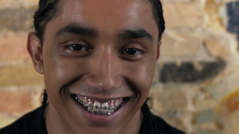Young man with braces stares at camera then smiles Footage