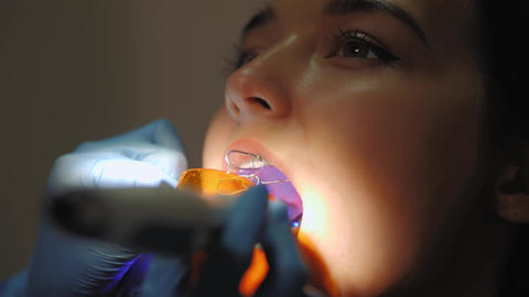 Dentist doing a dental treatment on a female patient Live Action