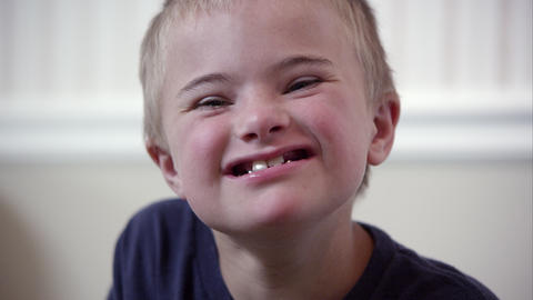 Close up of a young downs syndrome boy's face ビデオ
