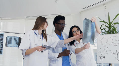 Team of doctors researching lungs xray of ill patient Footage