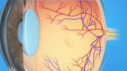 Animated Eye's Anatomy, Wet Macular Degeneration Footage