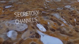 secretory glands and cancer cell Footage