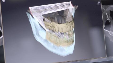 3D dental digital modeling restoration. 3d model of teeth, scanned teeth of the Footage
