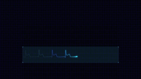 EKG 003: Medical video background with an electrocardiogram heart monitor pulse and copy space Animation