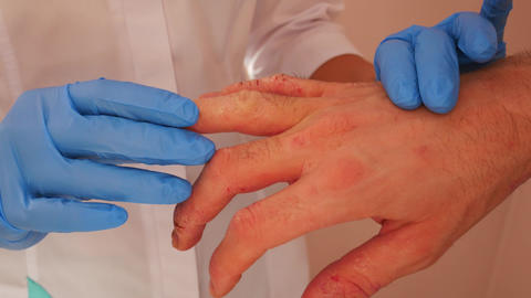 Doctor examining patient with dermatitis on hands, closeup Live影片