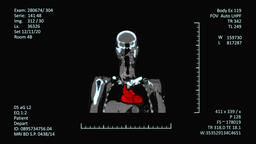 Medical MRI Scanner display, CT or CAT images Footage