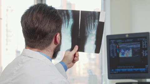 Rear view shot of a male doctor looking at foot x-ray of a patient Live Action