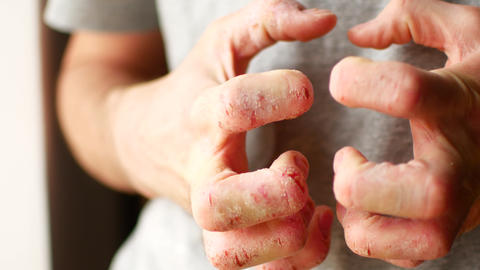 The man scratches his hands. Very itchy fingers, psoriasis Footage