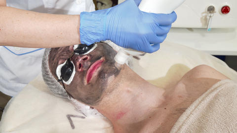 Cosmetologist doing facial carbon peeling for male client Live Action