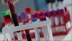 Blood Tests In Medical Laboratory Footage