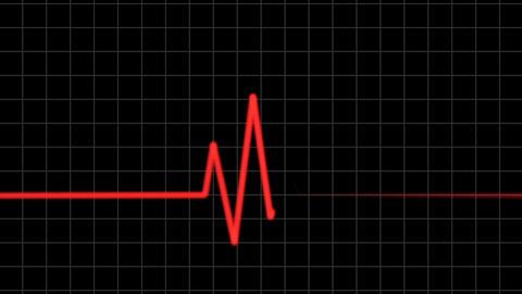 Heartbeat 04 Animation