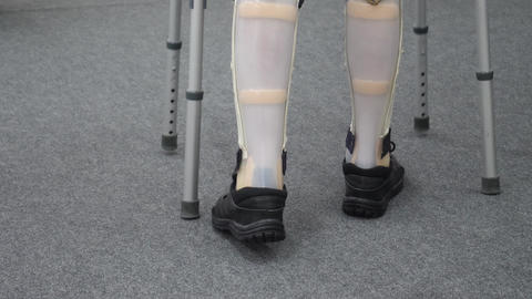 Disabled Person with Prosthetic Leg Footage