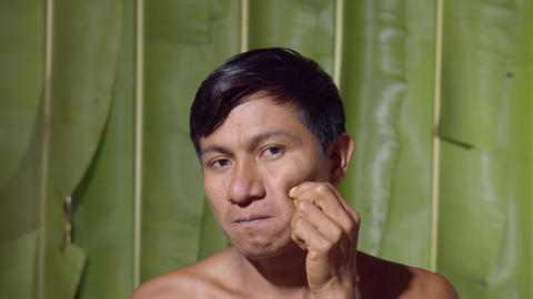 Adult Man Pimple Popping In Ecuador Live Action