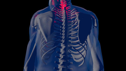 4K Neck Pain in Human Body Transparent Design 2 Animation