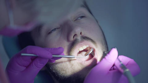 Female gloved hands of dentist checking tooths of bearded patient using mirror Live Action