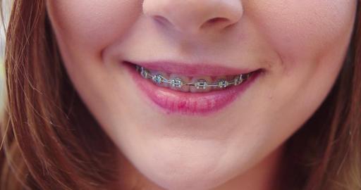 Young Lady's Mouth. Detail Shot Acción en vivo