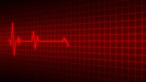 Heart beat cardiogram animation Animation