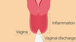 Inflammatory process in the vagina. Gynecology 2D animation Animation
