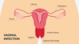 Inflammatory process (vaginal infection). Gynecology 2D animation Animation