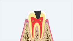 Removal of tooth (dental extraction). 2D animation video… Stock Video Footage