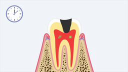 Removal of tooth (dental extraction). 2D animation video (dental video 4k) Animation