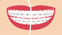 Super floss for dental braces (hygiene for braces). 2D dental video 4K Animation