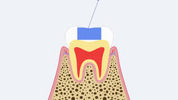 Dental treatment of caries (glass ionomer cement tooth decay). 2D video 4K Animation
