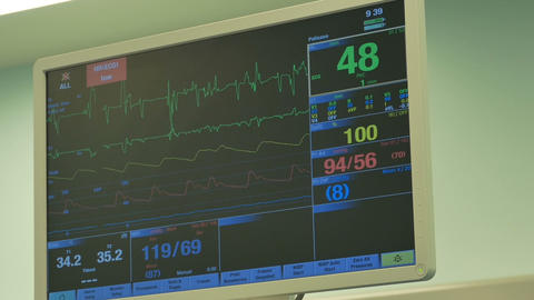 ECG Monitor in Operating Theater Footage
