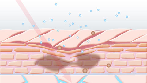Dry skin condition animation Animation