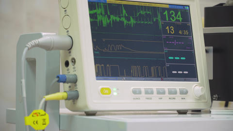 Cardiac monitor in operating room Live Action