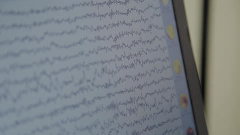 Close-up shot of monitor with results of monitoring the human brain activity Footage