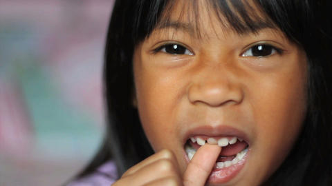 Little Girl Wiggling Her Loose Front Tooth Stock Video Footage