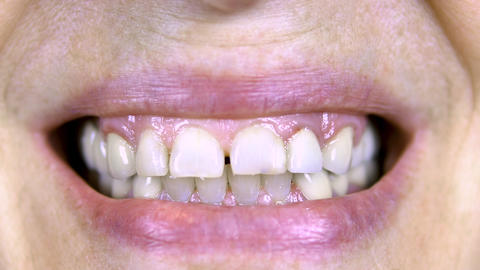 Old woman shows teeth. The upper teeth are straight and the lower crooked. close Live Action