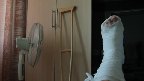 ankle injury. a man with an injured leg rests. leg in plaster ビデオ