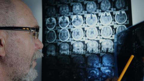 Doctor examining the MRI scan Archivo