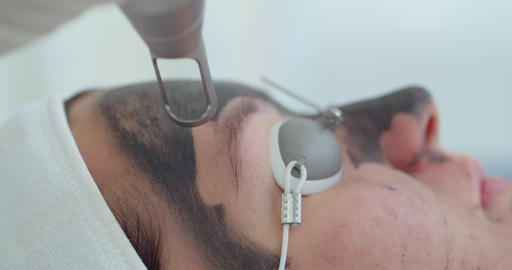 Carbon face peeling procedure. Laser pulses clean skin of the face. Hardware Live Action